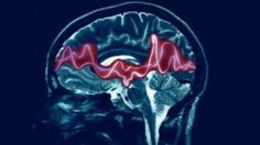 Hyaluronan: New Cause of Epilepsy Discovered