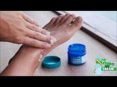 La forma más facil y sencilla de eliminar los juanetes de forma natural y sin sufrir dolor - YouTube