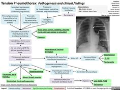 Tension Pneumothorax: Pathogenesis and clinical findings (calgaryguide.ucalgary.ca).