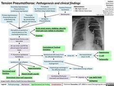 Tension Pneumothorax: Pathogenesis and clinical findings (calgaryguide.ucalgary.ca).