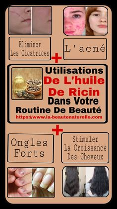 Utilisations De L'huile De Ricin Dans Votre Routine De Beauté #utilisations #ricin #beauté