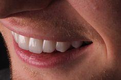 Beautiful Teeth, Dental Veneers, Porcelain Veneers, Smile Makeover, Natural Curves, Cosmetic Dentistry, Link, Artist, Photography