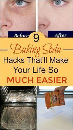 #BakingSodaDryShampoo Baking Soda For Cooking, What Is Baking Soda, Baking Soda For Skin, Baking Soda And Honey, Baking Soda On Carpet, Home Baking, Baking Soda Baking Powder, Baking Soda Vinegar, Baking Soda Shampoo