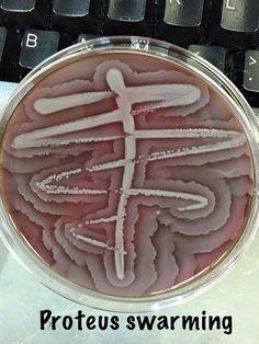 Proteus swarming on an agar plate.
