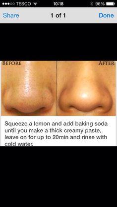 Natural Acne Treatment, Skin Care Treatments, Natural Skin Care, Natural Beauty, Natural Face, Homemade Acne Treatment, Organic Skin Care, Beauty Care, Beauty Skin