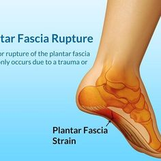 TOP 5 CAUSES OF PLANTAR FASCIITIS . Unsuitable / worn out shoes Foot anatomical problems Weak foot muscles Standing long periods High impact activities . Want more information on combating Plantar Fasciitis. Visit the link below for more he Plantar Fasciitis Stretches, Plantar Fasciitis Exercises, Plantar Fasciitis Treatment, Plantar Fasciitis Shoes, Heel Pain, Foot Pain, Foot Remedies, Natural Remedies, What Is Health