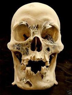 bone cancer?