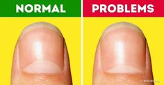 13Health Problems the Moons onYour Nails Warn You About