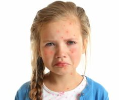 Can 7-year olds Get Pimples?