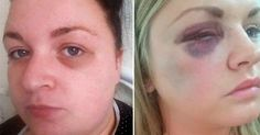 A British groom gave two bridesmaids black eyes at his wedding after punching them in a drunken brawl.