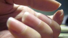 Nagelbettentzündung Behandlung: Hausmittel gegen Nagelbettentzündung