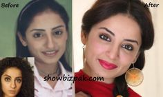 Pakistani Actresses Before and After Plastic Surgery