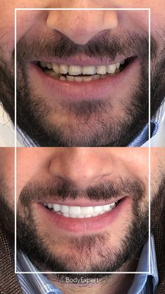 Like Anis, don't hesitate to come to us for a perfect smile. You will be more than delighted ;) Need a quote? For more information, please contact us !. #Bodyexpert #Testimony #BeforeAfter #SmilePerfect #ImplantsDental #DentalCrowns #TestimonyDentalCare #PerfectTeeth #MedicalTourism #DentalCare #DentalClinics #Turkey #Istanbul #Hollywoodsmile #Emax #Zirconia Implants Dentaires, Dental Implants, Perfect Teeth, Perfect Smile, Medical Care, Dental Care, Dental Crowns, Teeth Care, Hair Transplant