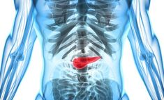 Overweight Treatment Study Shows Diabetes After 50 Can Be an Early Sign of Pancreatic Cancer Cedars Sinai Medical Center, Acute Pancreatitis, What Causes Diabetes, Diabetes In Children, Types Of Cancers, Abdominal Pain, Diabetes Management, Lose Weight Naturally, Cancer Treatment