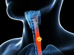 Esophageal mesothelioma cancer is not as common as pleural mesothelioma, but it is still a deadly disease that can cause severe problems in individuals who suffer from it.