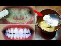 Λεύκανση δοντιών στο σπίτι σε 2 λεπτά - Πώς να λευκαίνετε φυσικά τα κίτρινα δόντια σας - YouTube Diy Lace Ribbon Flowers, Teeth Whitening Remedies, Teeth Health, Natural Shampoo, White Teeth, Beauty Recipe, Teeth Cleaning, Baby Food Recipes, Cool Things To Buy