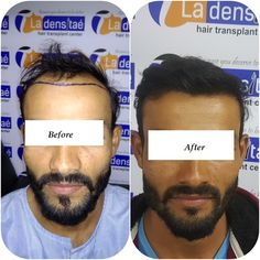 Worried About Baldness…? Get Effective Hair Transplant Treatment at La Densitae Hair Transplant Clinic in Pune. Easy EMI Available For 24 Months. Call Now: 8888643333 Hair Transplant Results, Hair Transplant Cost, Scalp Micropigmentation, Hair Clinic, Hair Tattoos, Hair Regrowth, Call Backs, Pune, Fall Hair