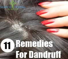 11 Remedies For Dandruff at home