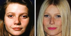 Gwyneth Paltrow Plastic Surgery Before and After - she needs a new personality t. - - Gwyneth Paltrow Plastic Surgery Before and After – she needs a new personality too! Fake from head to toe! Gwyneth Paltrow, Bad Plastic Surgeries, Plastic Surgery Gone Wrong, Celebrity Plastic Surgery, Cosmetic Procedures, No Photoshop, Liposuction, Beauty Inside, Without Makeup