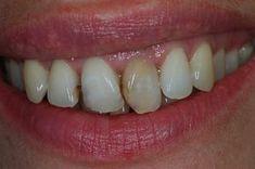A fogszuvasodás valódi okai, a fogak öngyógyítása