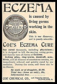 1898 Quack Medicine Ad Eczema Cure Piles Ringworm Acne Hives Coe Chemical OH