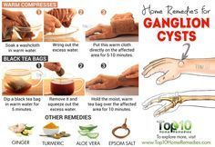 home remedies for gangelion cysts