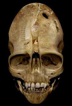 El cráneo de Andover, dicen los expertos que es real [Aquiziam]  La historia detrás de este cráneo es fascinante. Nadie sabe de donde originalmente provino el cráneo.