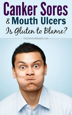 I struggled with canker sores and mouth ulcers most of my life until I went fully gluten free and committed to the Paleo Diet. Find out how you can be rid of these painful mouth problems too! Canker Sore Causes, Canker Sores, Mouth Sores Causes, Mouth Problems, Remedies For Tooth Ache, Receding Gums, Oral Surgery, Cold Sore