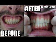 How to Whiten Your Teeth Naturally at Home with Turmeric