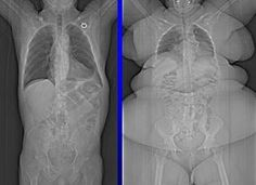 Images of health weight compared to obese weight for lung capacity.  Obese people can have as low as 1/10th the lung capacity as a healthier weighted person.