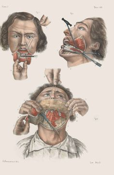 """Removal (or """"resection"""") of the lower jaw."""