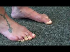 Intrinsic Foot Muscle Training for fallen arches  . . . . . happens as we age.
