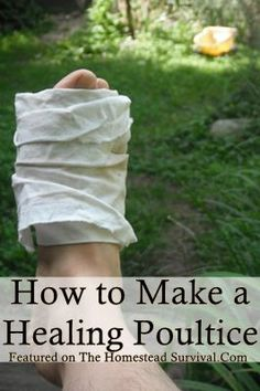 How to Make a Healing Poultice Learning how to make a healing poultice is a key element in a home remedy first aid natural medicine plan. Poultices are ver Holistic Remedies, Natural Health Remedies, Natural Cures, Natural Healing, Herbal Remedies, Health And Beauty, Health And Wellness, Health Tips, Healing Herbs