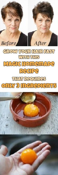 Fastest hair growth with this magic homemade recipe, 3 ingredients only! Hair Remedies, Natural Remedies, Hair Thickening Remedies, How To Grow Your Hair Faster, Salud Natural, Tips Belleza, Hair Health, Grow Hair, Healthy Hair