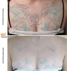 This has been a HUGE project for us.  The client had 33 treatments elsewhere and become frustrated with the lack of progress.  We've since done 6 and have been able to make a significant dent in this chest piece, the ultimate goal is to further reduce the remaining pigment and be tattoo free.    Every tattoo will have different results, we post a wide variety of images to help set realistic expectations.