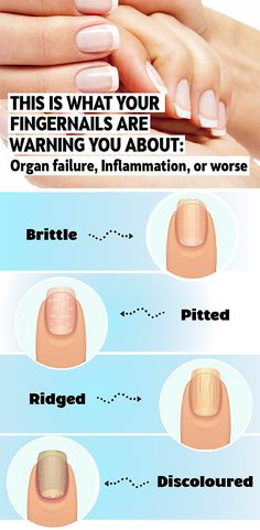 This is What Your Fingernails Are Warning You About: Organ failure, Inflammation, or Worse - NZ Holistic Health Home Beauty Tips, Beauty Tips For Skin, Skin Care Tips, Beauty Hacks, Diy Beauty, Beauty Care, Beauty Makeup, Beauty Products, Healthy Fingernails