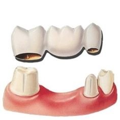 A missing tooth solution; a Bridge. Dental bridges literally bridge the gap created by one or more missing teeth. A bridge is made up of two or more crowns for the teeth on either side of the gap  (these two or more anchoring teeth are called abutment teeth) and a false tooth/teeth in between.