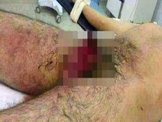 Blog Paulo Benjeri Notícias: Floresta-PE: Homem corta o próprio pênis e engole