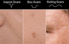 skin needling acne scars