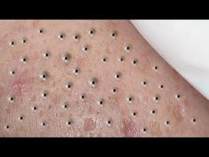 Skin Disease Pictures, Doctor Pimple Popper, Honey Face Cleanser, Covering Acne, Whitehead Removal, Pimple Popping, Satisfying Video, Blackhead Remover, Natural Treatments