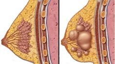 Ovarian Cyst Remedies - Nemusíte ísť pod skalpel: Vyliečte všetky cysty s týmto receptom More Than Women Worldwide Have Been Successful in Treating Their Ovarian Cysts In Days, and Tackle The Root Cause Of PCOS Using the Ovarian Cyst Miracle™ System! Ovarian Cyst Treatment, Hormone Replacement Therapy, Acide Aminé, Pcos Symptoms, Natural Home Remedies, Herbal Remedies, Natural Treatments, Alternative Medicine, Vestidos