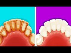 8 Эффективных и Натуральных Способов Избавиться от Зубного Налета - YouTube