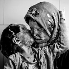 Somayeh Mehri (29) And Her Daughter Rana Afghanipour (3) Give Each Other A Kiss. After Being Disfigured In An Acid Attack, They Say Others Don't Like To Kiss Them.