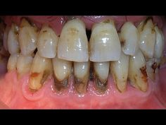 Eliminate tartar and whiten your teeth in 15 min with this recipe that a dentist will never tell you - YouTube