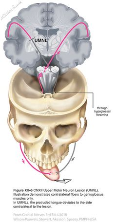 Hypoglossal XII - Cranial Nerves