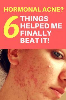 Cystic Acne Treatment, Back Acne Treatment, Natural Acne Treatment, Acne Treatments, Greasy Skin, Oily Skin, Acne Breakout, Hormonal Acne