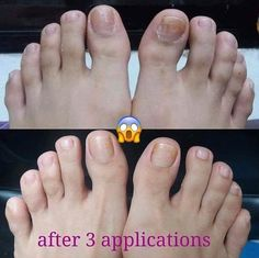 Dana Nail Renewal System - The Beauty Guide Beauty Guide, Nail Care, Hair Beauty, Nails, Nu Skin, Skin Products, Posts, Kit, Business