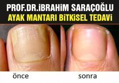 Choosing A Strategy For Toe Nail Fungus – Usa Viral Gossip Treating Toenail Fungus, Toenail Fungus Treatment, Homemade Skin Care, Lose Belly Fat Quick, Natural Treatments, Diet And Nutrition, Natural Healing, Toe Nails, Fungi