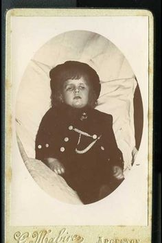 This child looks if it had suffered a lot. Poor thing.