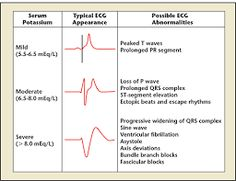 Imagini pentru hypokalemia hyperkalemia ecg